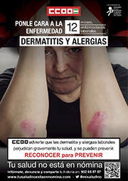 Dermatitis y Alergias